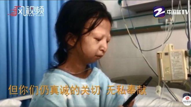 Китайская студентка умерла из-за того, что питалась одним рисом